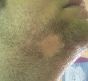 Patchy beard - alopecia areata