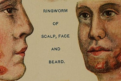 Best Home Remedies For Ringworm in Beard And On Face